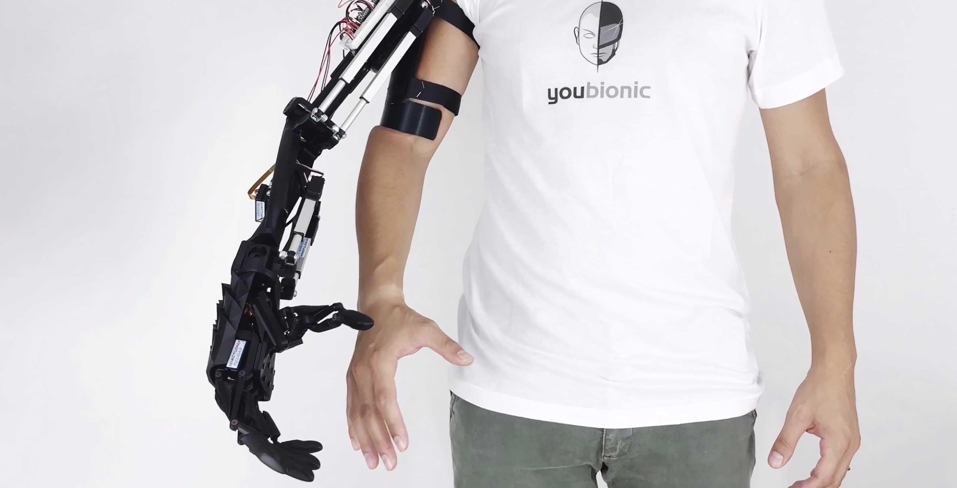 Youbionic arm