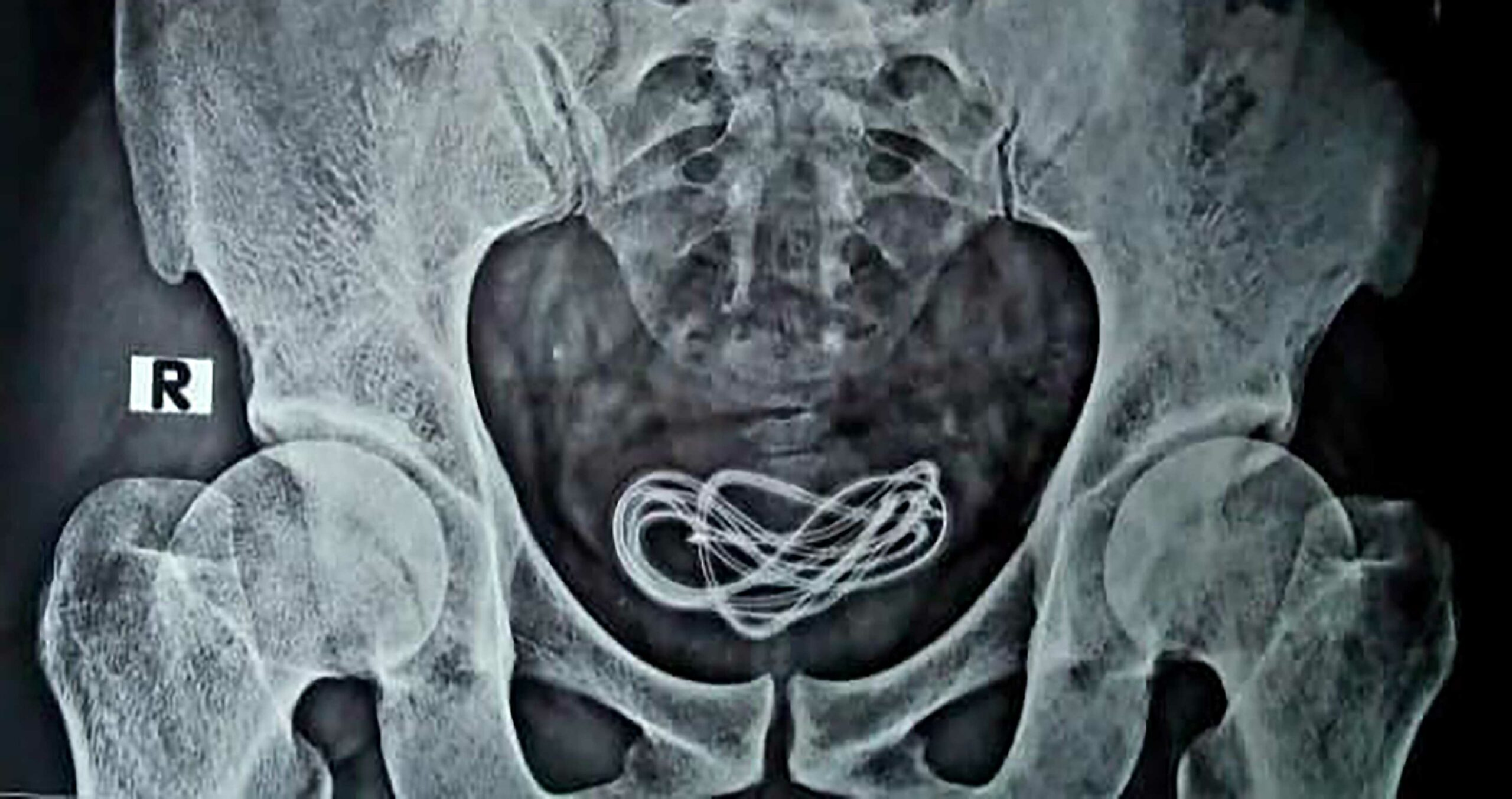 Cable X-ray